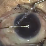 So Then, How Is Cataract Surgery Done? (post 6 of 9)