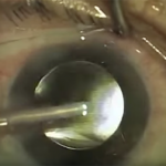 So Then, How Is Cataract Surgery Done? (post 7 of 9)