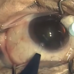 So Then, How Is Cataract Surgery Done? (Post 5 of 9)