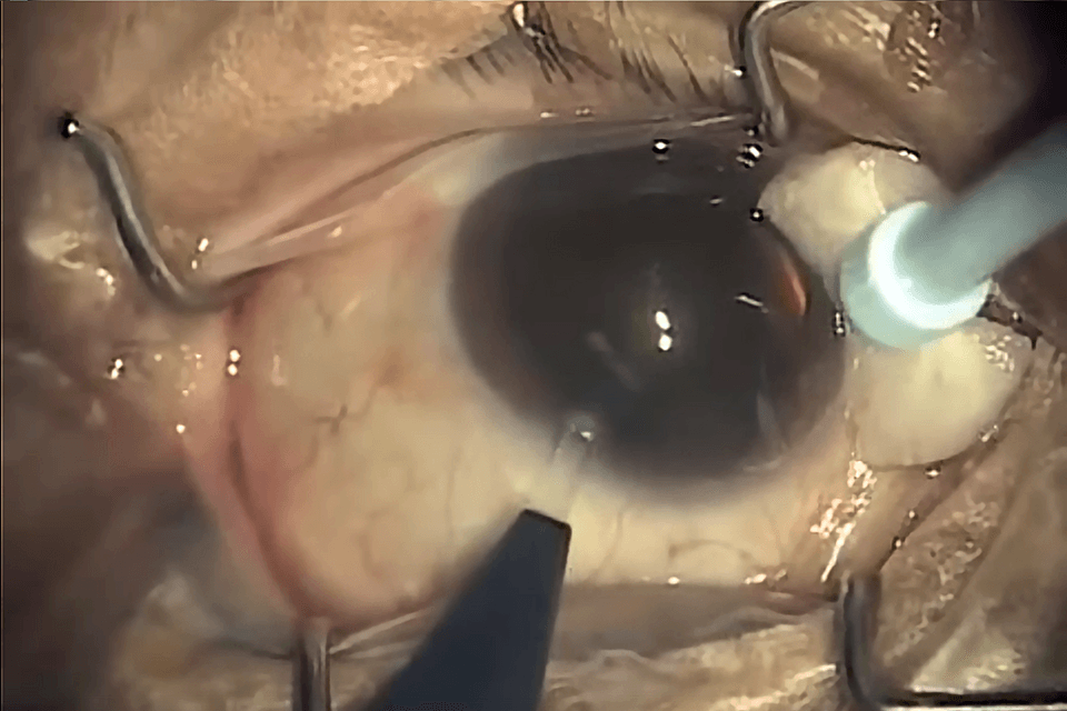 How is Cataract Surgery done clear cornea temporal incision