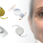 Cataract Surgery Lens Choices: Why I Prefer to Use the Staar nanoFLEX® Intraocular Lens