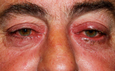 The Link Between Ocular Rosacea and Parkinson's – Are You at Risk?