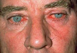 Ocular Rosacea via rosaceaspot.com