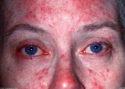 Ocular Rosacea via visionoptique.com